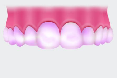歯垢チェック