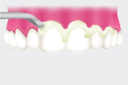 歯間の汚れを除去