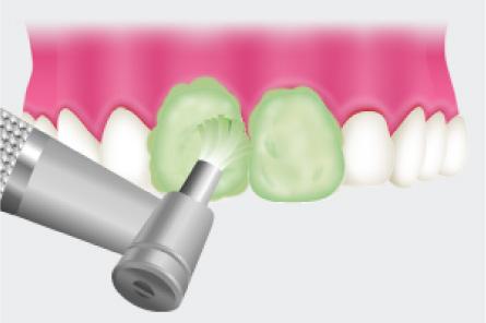 歯面の汚れを除去