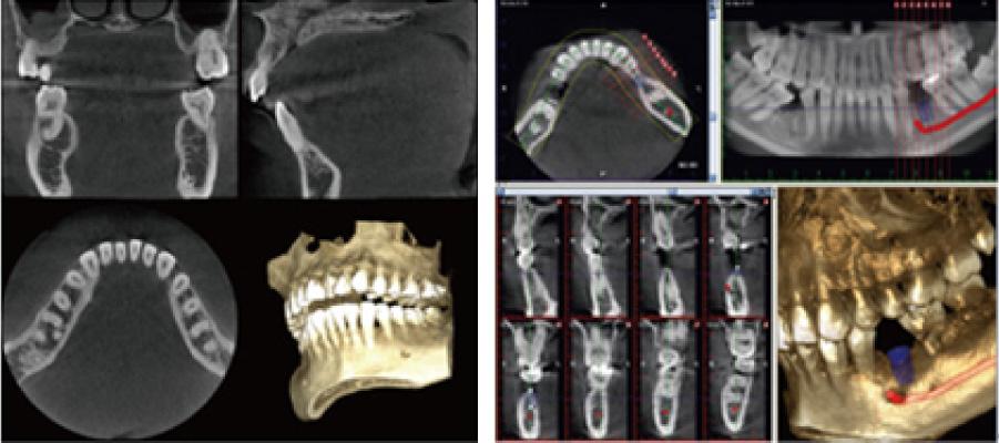 ※CT(3D)画像/右はインプラントの場合